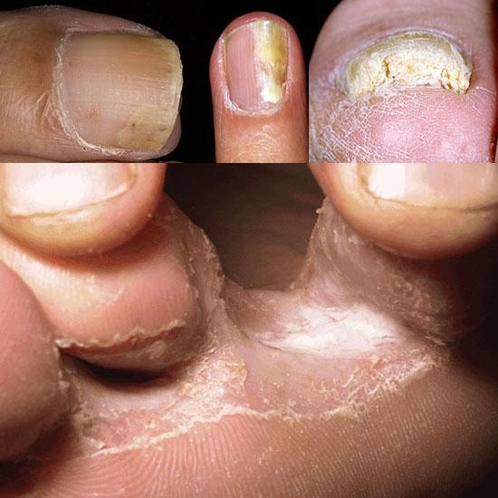 El hongo de las uñas en la piel de la foto