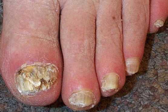 Como determinar el hongo de la piel de los pies